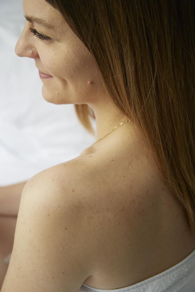 Weleda-Clear-Skin-Hanna-Schumi